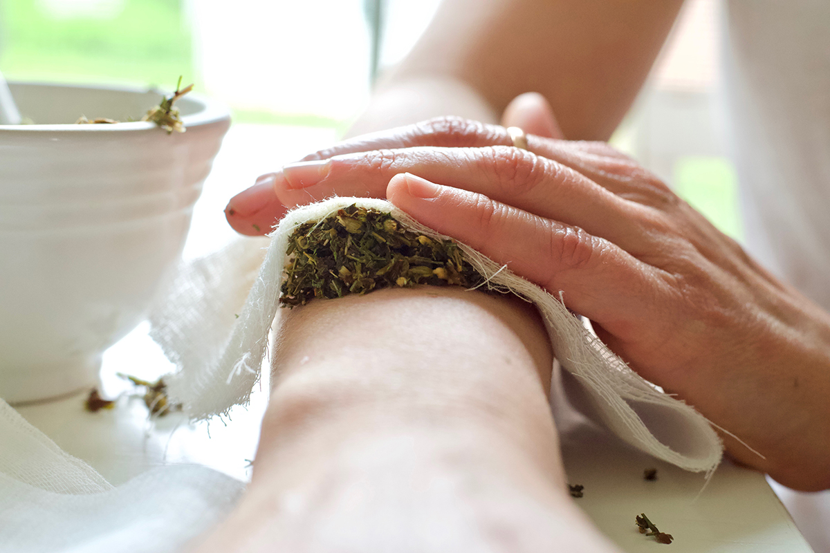 How To Manage Burns Naturally From Start To Finish   Herbal Academy   Burns are a common ailment that many will experience at least once in life. Learn how to manage burns naturally the next time you experience a burn.